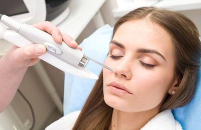 лазерное прижигание сосудов в носу